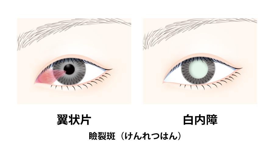 眼病×紫外線